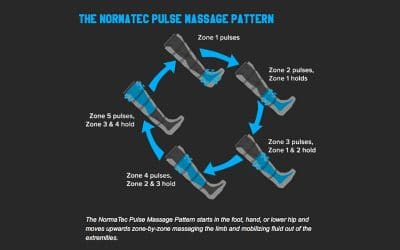 The Ultimate Guide to NormaTec Recovery Therapy