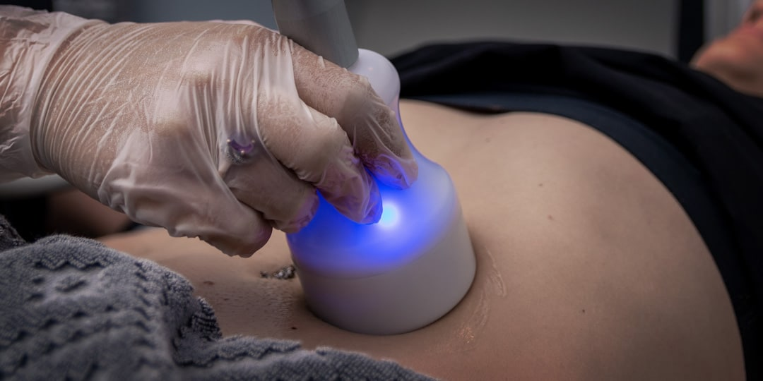 CryoSculpting CryoSlimming